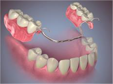 Fixed and Removable Prosthodontics 2